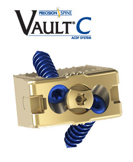 The Vault C Anterior Cervical Discectomy and Fusion System (ACDF)